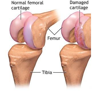 Image of Knee Cartilage