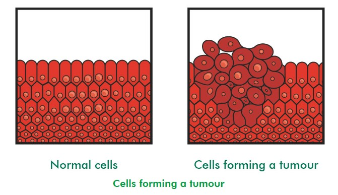Image of cells forming a tumour (source: Macmillan)